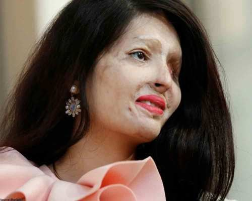 Do You Know Reshma Qureshi – Acid Attack Survivor Turned Model?