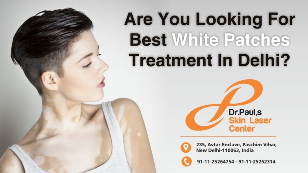 Are You Looking For Best White Patches Treatment In Delhi? via Skin Laser Centre
