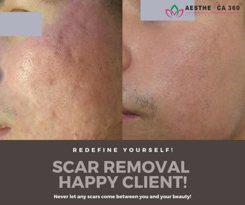 Scars? No worry! We have the best solution for it. Let our e... via Mayank Verma