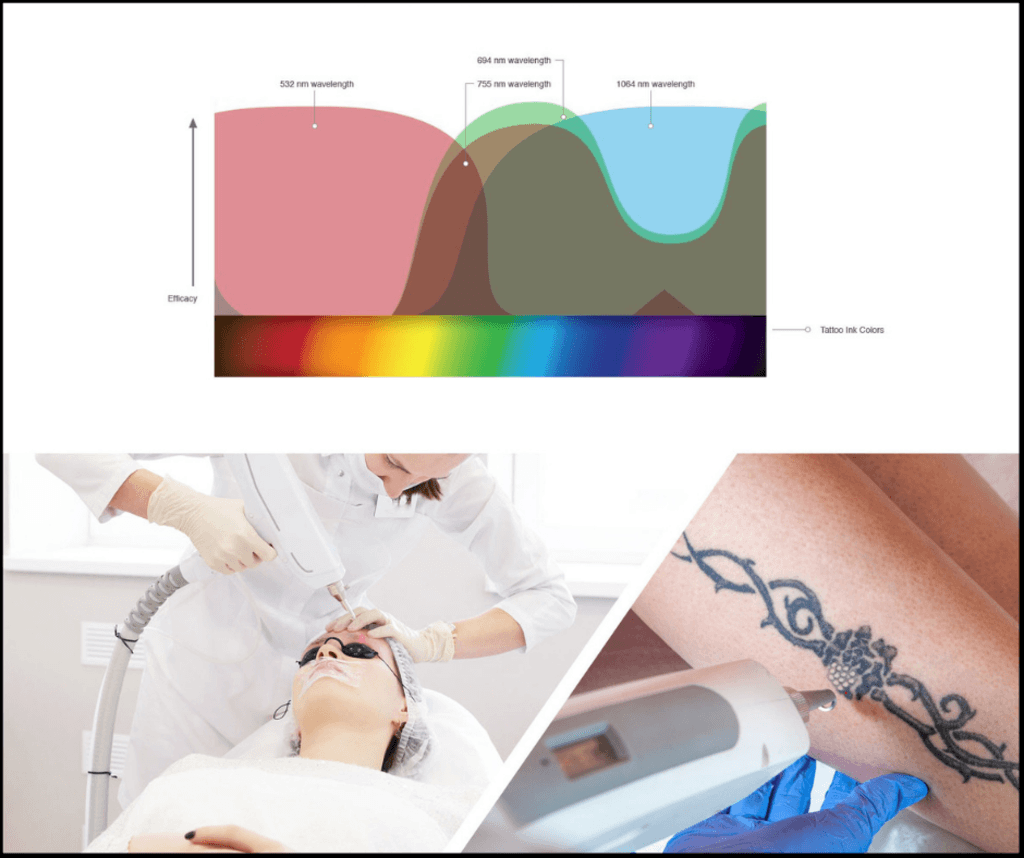 Laser Tattoo Removal Machines - Photo Biotech via Photo Biotech