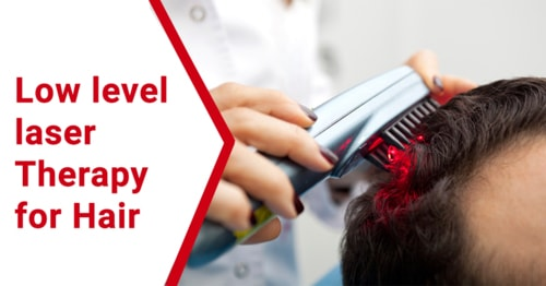 Low-Level Laser Therapy for hair via JaipurSkincity