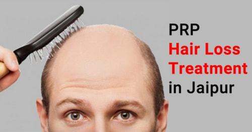 PRP  hair loss Treatment in jaipur via JaipurSkincity