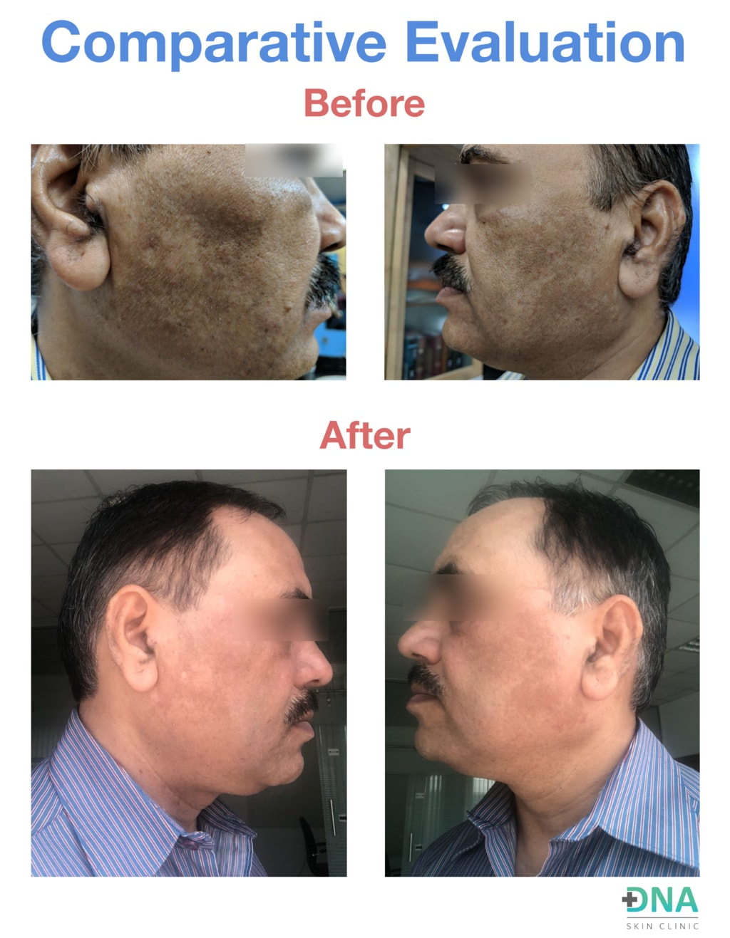 DNA Skin Clinic - Melasma via DNA Skin Clinic
