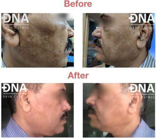 DNA Skin Clinic - Chemical Peels via DNA Skin Clinic