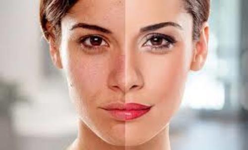 DNA Skin Clinic - Glow Medi Facial via DNA Skin Clinic