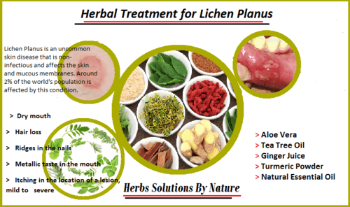 Natural Herbal Treatment for Lichen Planus - Herbs Solutions By Nature