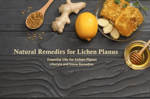 Natural Remedies for Lichen Planus Essential Oils and Herbs to Treats Skin Condition