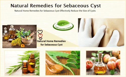 Natural Remedies for Sebaceous Cyst Effectively Reduce the Size of Cysts - Herbs Solutions By Nature
