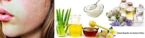 Natural Remedies for Keratosis Pilaris Right Way to Reduce Symptoms
