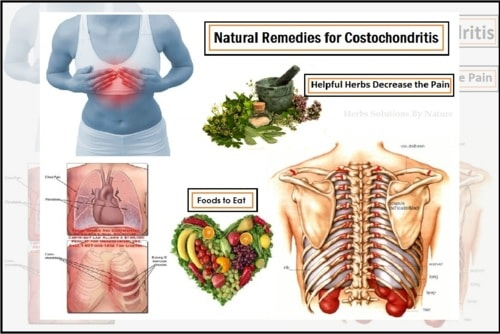 Costochondritis Treatment Natural Remedies Decrease the Pain - Herbs Solutions By Nature