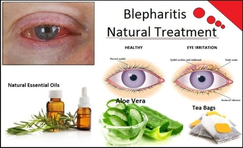 How to Get Rid of Blepharitis with Natural Remedies - Herbs Solutions By Nature