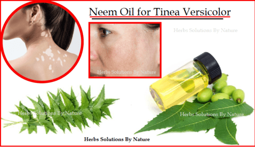 Neem Oil for Tinea Versicolor Natural Remedies and Natural Essential Oils - Herbs Solutions By Nature