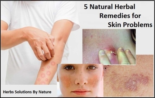 5 Natural Herbal Remedies for Skin Problems - Herbs Solutions By Nature