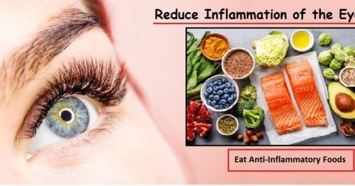 Reduce Inflammation of the Eye with Natural Remedies