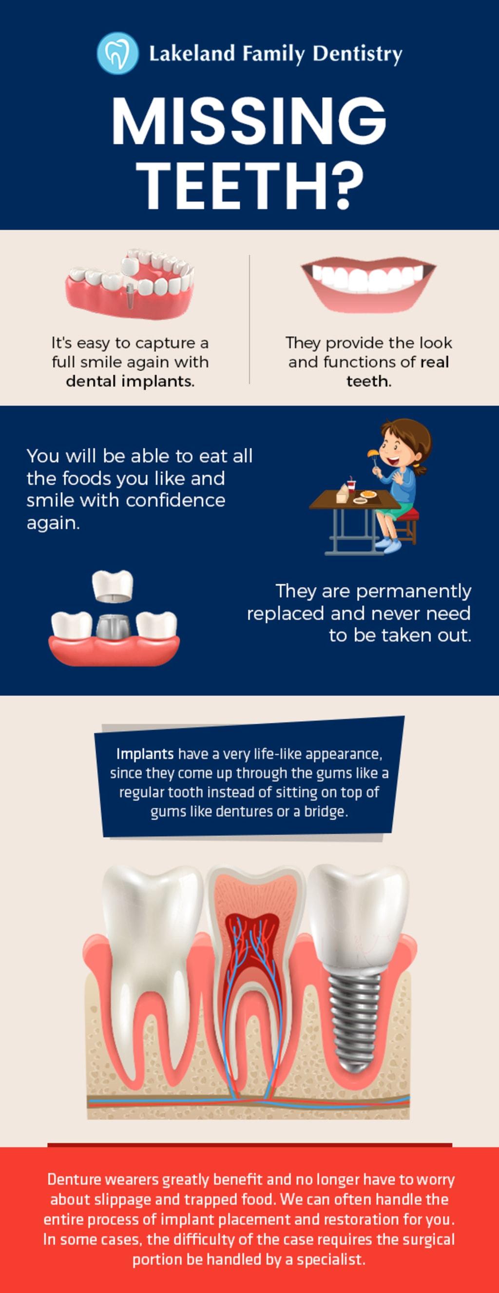 Dental Implants by Lakeland Family Dentistry - Natural Looki... via Lakeland Family Dentistry