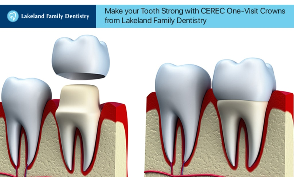 Make your Tooth Strong with CEREC One-Visit Crowns from Lake... via Lakeland Family Dentistry