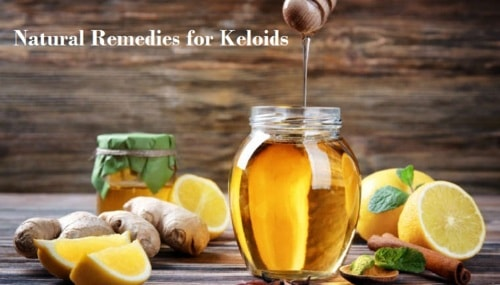 Natural Remedies for Keloids Get Rid of Scars Completely - Herbs Solutions By Nature