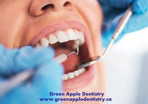 GreenAppleDentistry offers Dental Implant services in in Vau... via andrewstanley