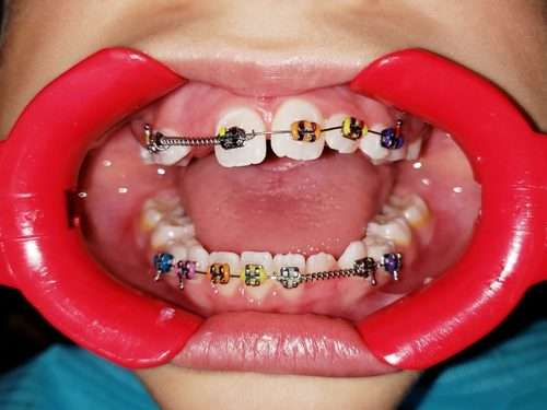 What Is The Need For Clear Teeth Retainers?