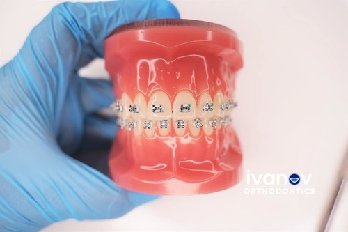 Miami Orthodontic Specialists | Orthodontic Care Specialists Near Me
