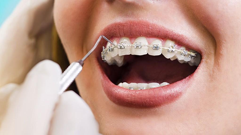Visit Vaughan Orthodontics Clinic - Arenson Dental & Associa... via arensondental