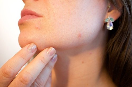 6 Effective Options that can relieve Your Acne