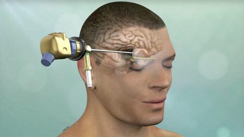 Minimally Invasive Brain Surgery / Keyhole Craniotomy - Prof Dr Khalid Mahmood