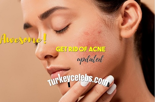 Get Rid Of Acne Doesn't Have To Be Hard. Read These 8 Tips.