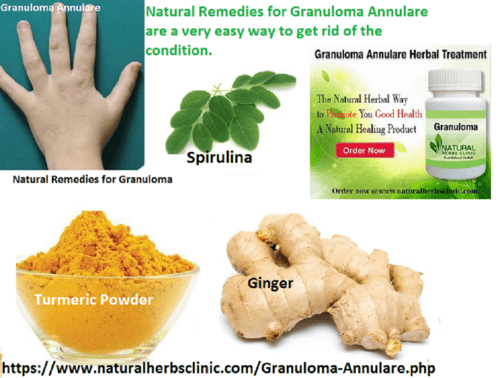 How Might Granuloma Annulare Be Treated with Natural Remedie... via Natural Herbs Clinic