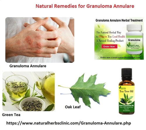 Effective Article for Patients to Know About Granuloma Annul... via Natural Herbs Clinic