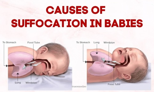 5 Common Causes Of Suffocation In Babies And Prevention