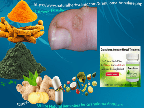 How Might Granuloma Annulare Be Treated with Home Remedies via Natural Herbs Clinic