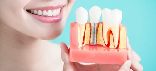 Dental Implants in Richmond Hill - Arenson Dental & Associat... via arensondental