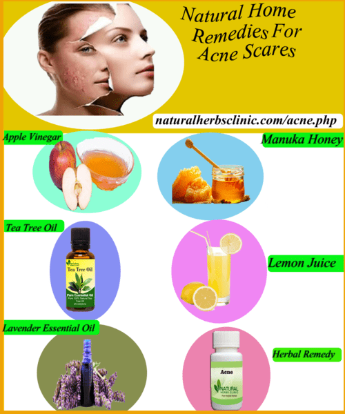 5 Natural Acne Spot Treatments - Natural Herbs Clinic