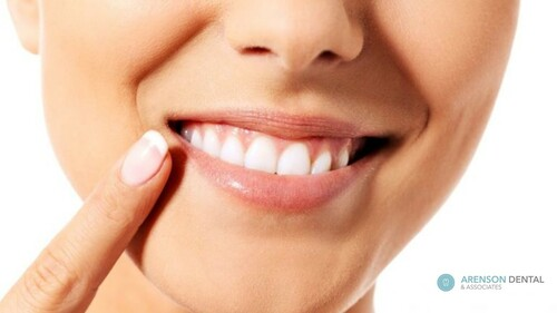 Prominent Teeth Cleaning in Richmond Hill, Ontario by Arenso... via arensondental