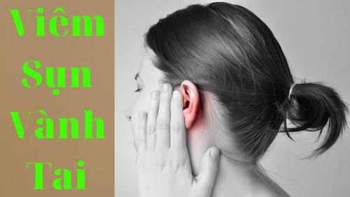 [ Bác Sĩ ] Tư vấn biểu hiện và cách chữa trị viêm sụn vành tai