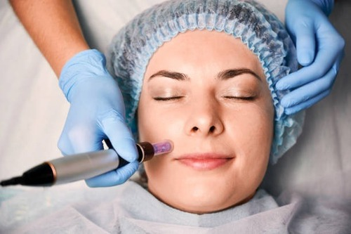 Micro-Needling, The New Way to Treat the Skin's Lines, Wrinkles and Scars, Normally