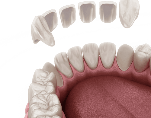 Are you looking to explore answers to FAQ about Veneers