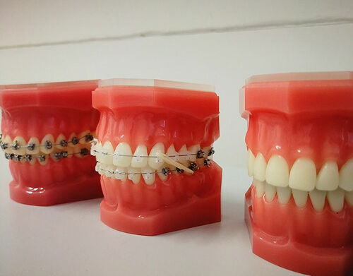 What is Orthodontics and Different Types of Braces?
