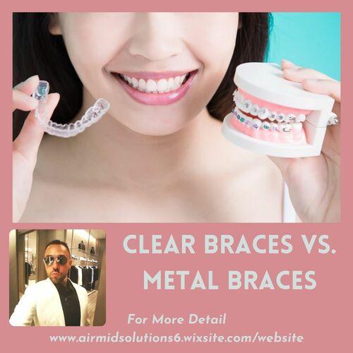 Clear Braces vs. Metal Braces   Marcresasco via Marc Resasco