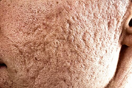 25% TCA Peel and Dermabrasion Significantly Improves Acne Scar Appearance - AnewSkin Aesthetic Clinic and Medical Spa
